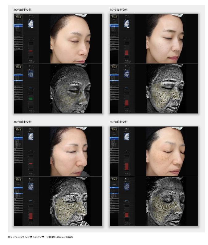 臨床試験画像